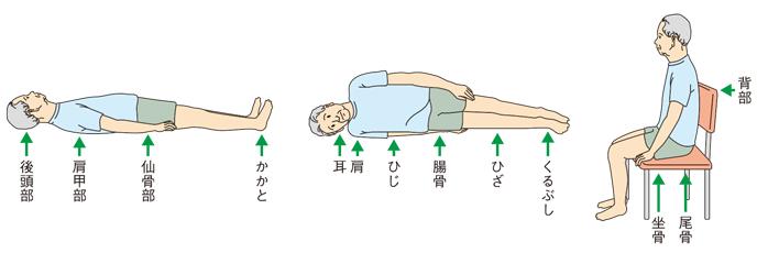 床ずれのできやすい部位