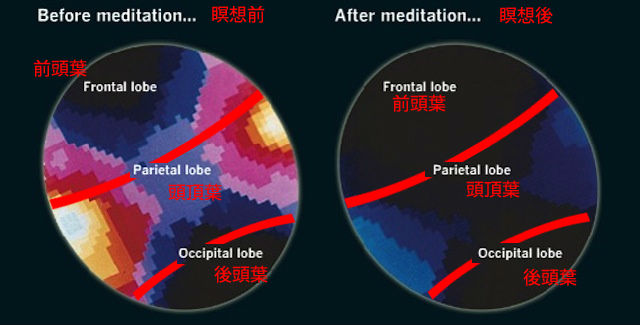 130904brain_meditate_03